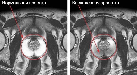 Лечится ли простатит у мужчин (ОТЗЫВЫ) можно ли вылечить хронический простатит