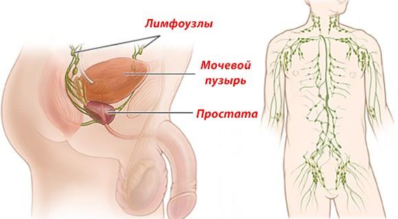 расположение паховых лимфоузлов у мужчин
