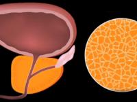 Что такое аденома простаты у мужчин и как ее лечат